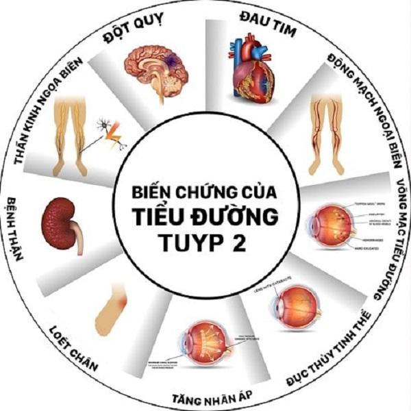 tieu-duong-tuyp-2-trieu-chung-nguyen-nhan-chuan-doan-va-phong-ngua2
